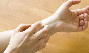 mites-itching